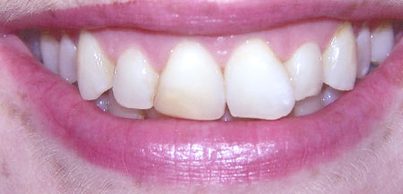 Veneers (Before)